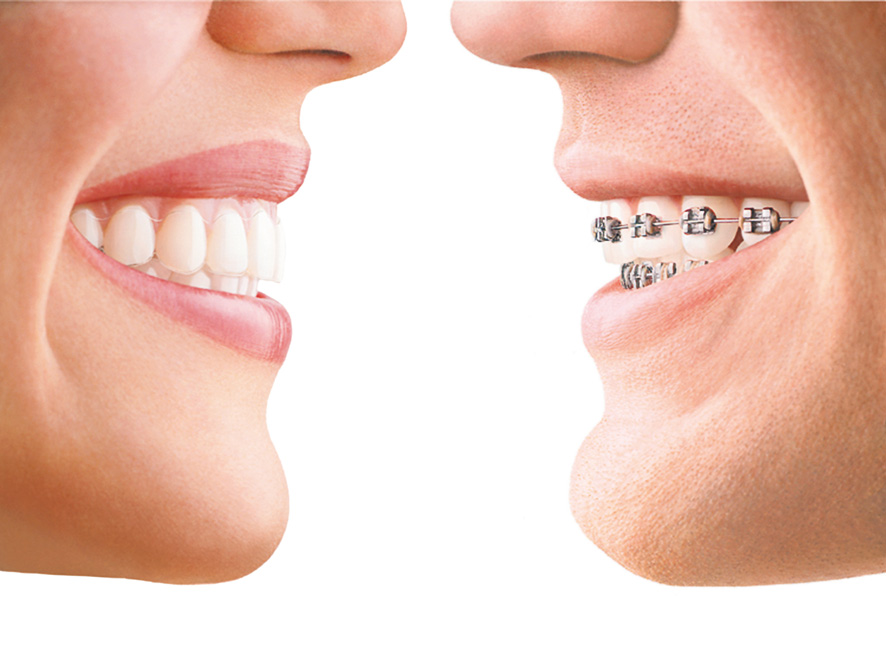 Why People Choose Invisalign