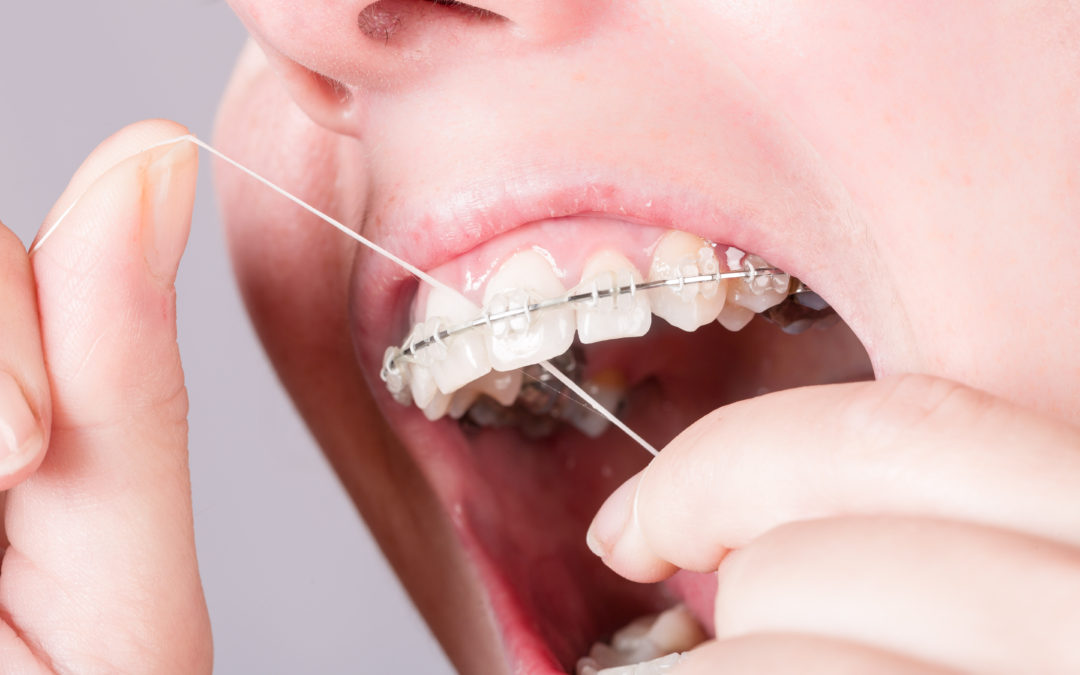 Prevent Plaque Buildup with Proper Oral Hygiene While Wearing Braces