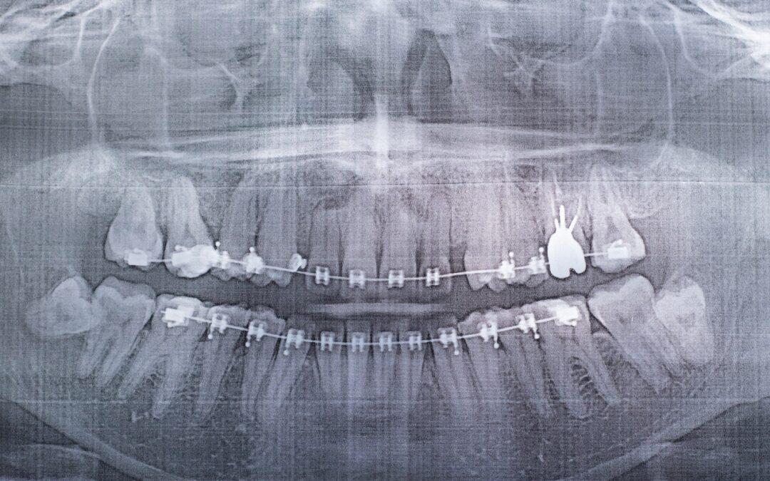 Wisdom Teeth and Braces: Myths versus Reality
