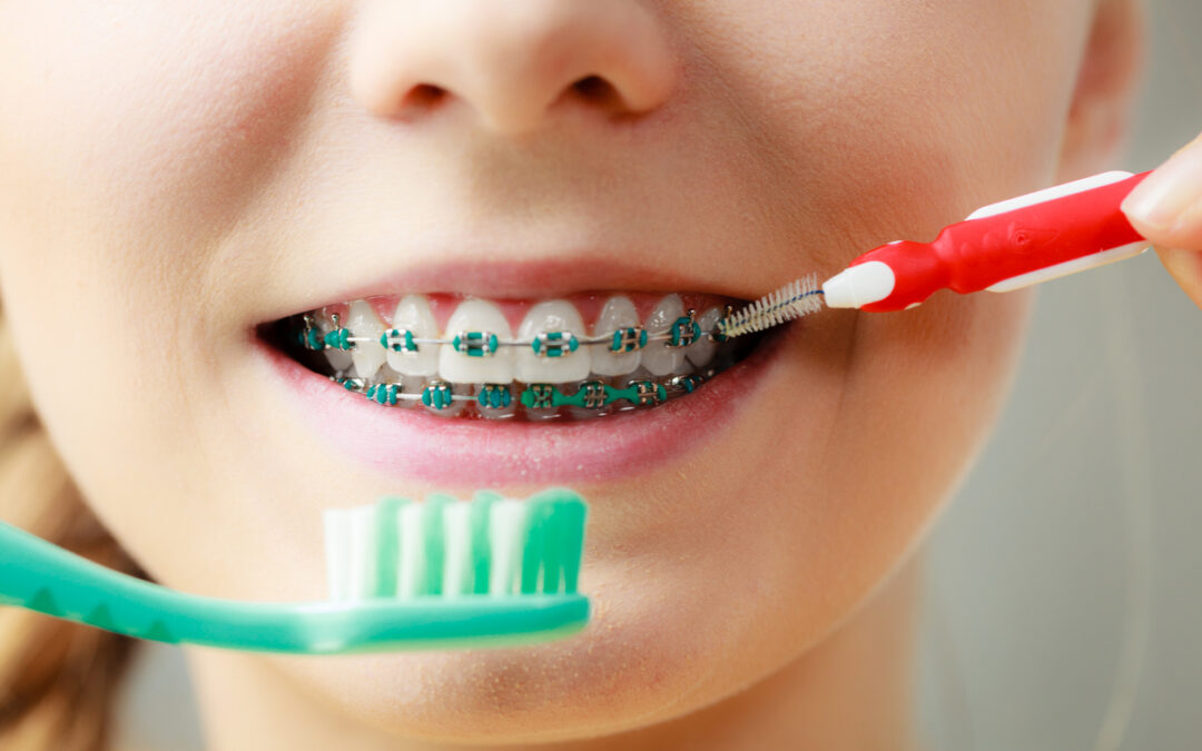 5 Things could extend the time Your braces Are On